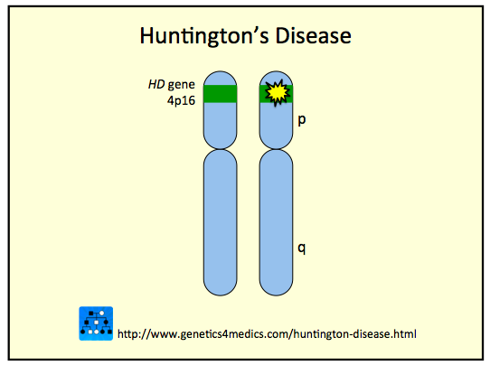 huntington disease Read the latest research news on huntington's disease learn about genetic  risks, potential new treatments and more.