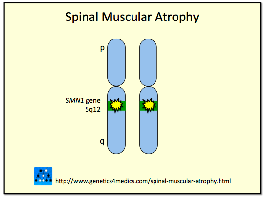 the spinal muscular atrophy and the muscle diseases in the medical research 1 j child neurol 2007 aug22(8):926-45 spinal muscular atrophy: classification, diagnosis, management, pathogenesis, and future research directions.
