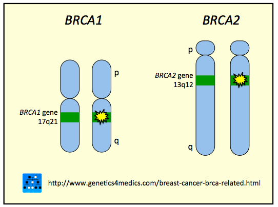 breast on what cancer chromosome is