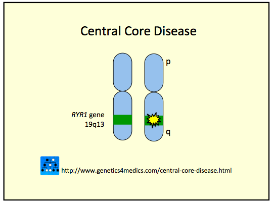 central core disease Central core disease & minicore: a place for support, learning & friends has 734 members this is an international group about ccd & minicore.